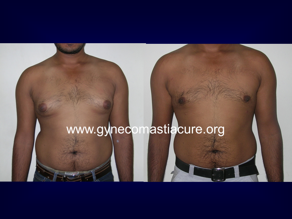 Before After Treatment Of Gynecomastia