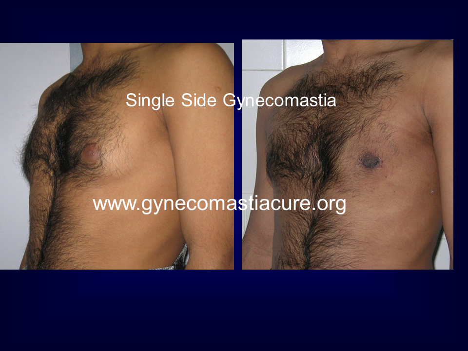 Single Sided Gynecomastia