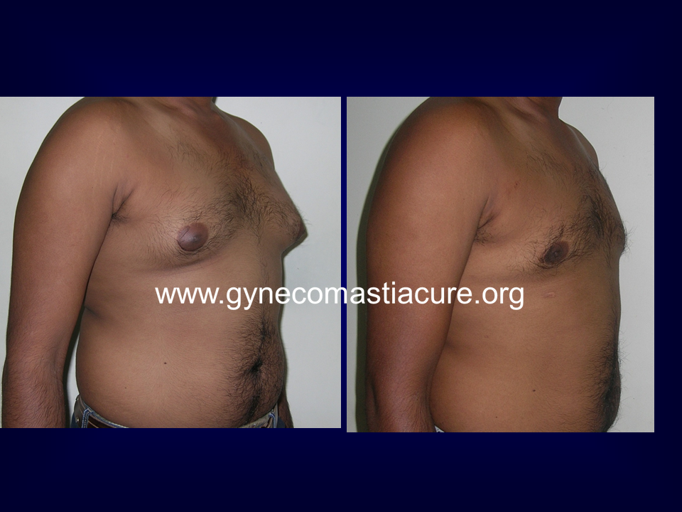 Male Breast Surgery Before After