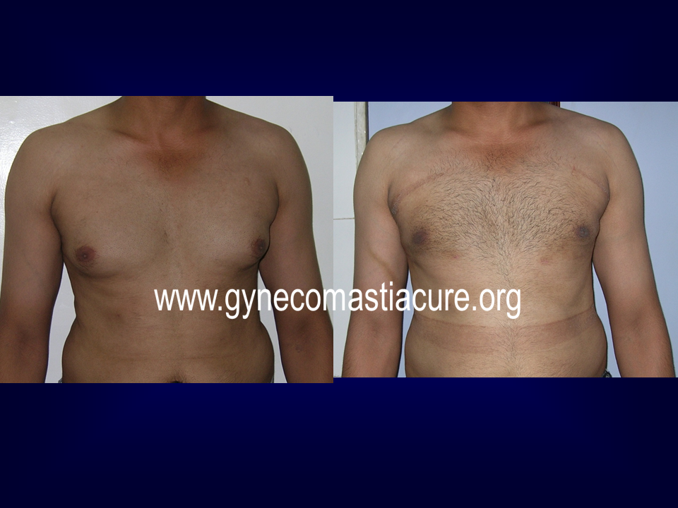 Before Treatment & After Treatment Of Gynecomastia