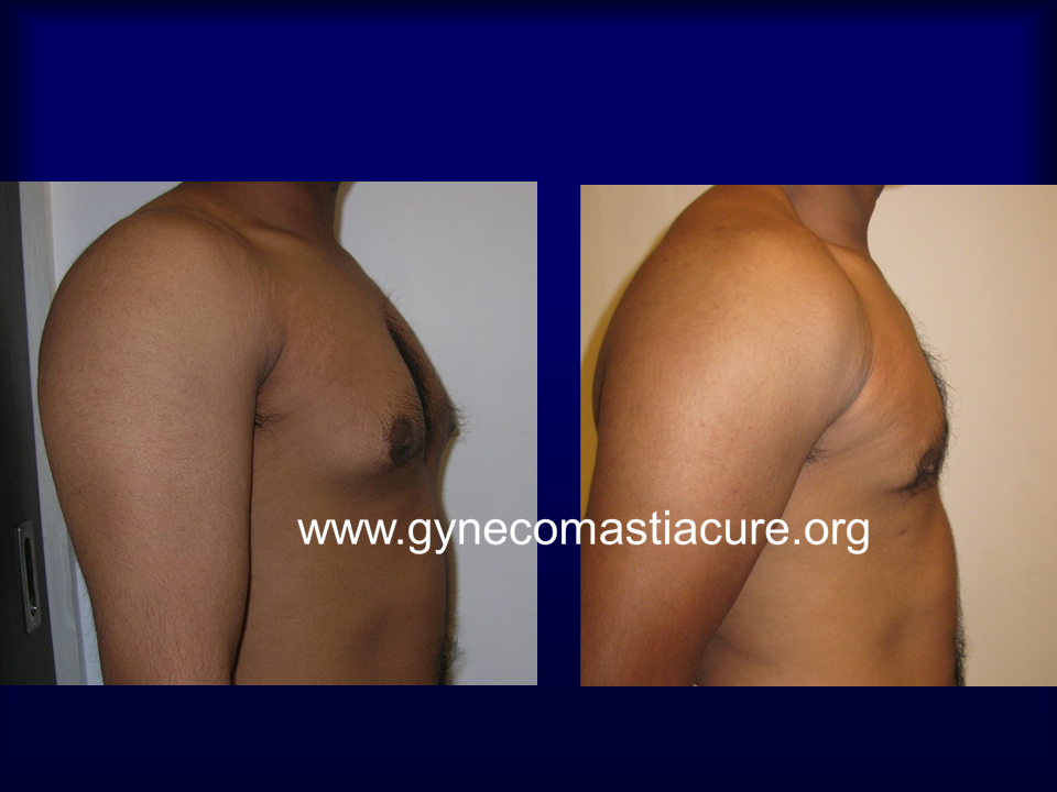 Male Breast Reduction Surgery Before After