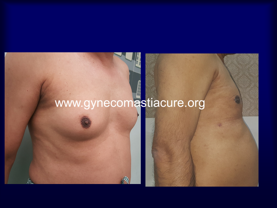 Before & After Gynecomastia Treatment