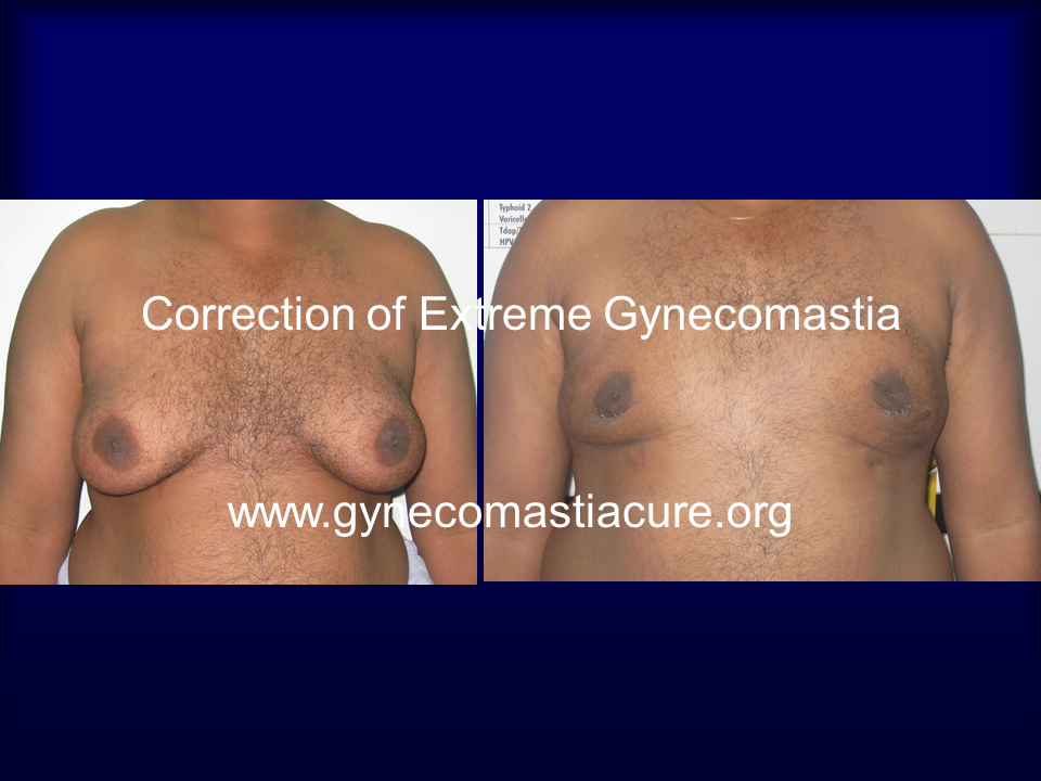 Correction Of Extreme Gynecomastia