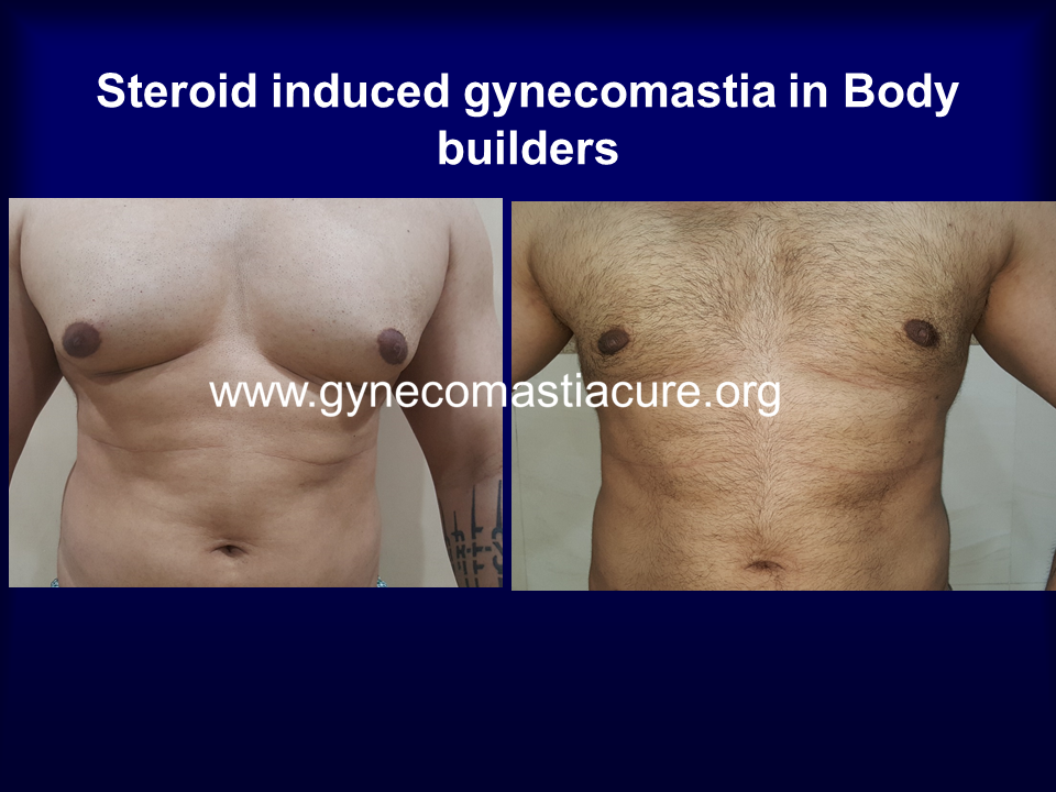 Steroid Induced Gynecomastia In Bodybuilders