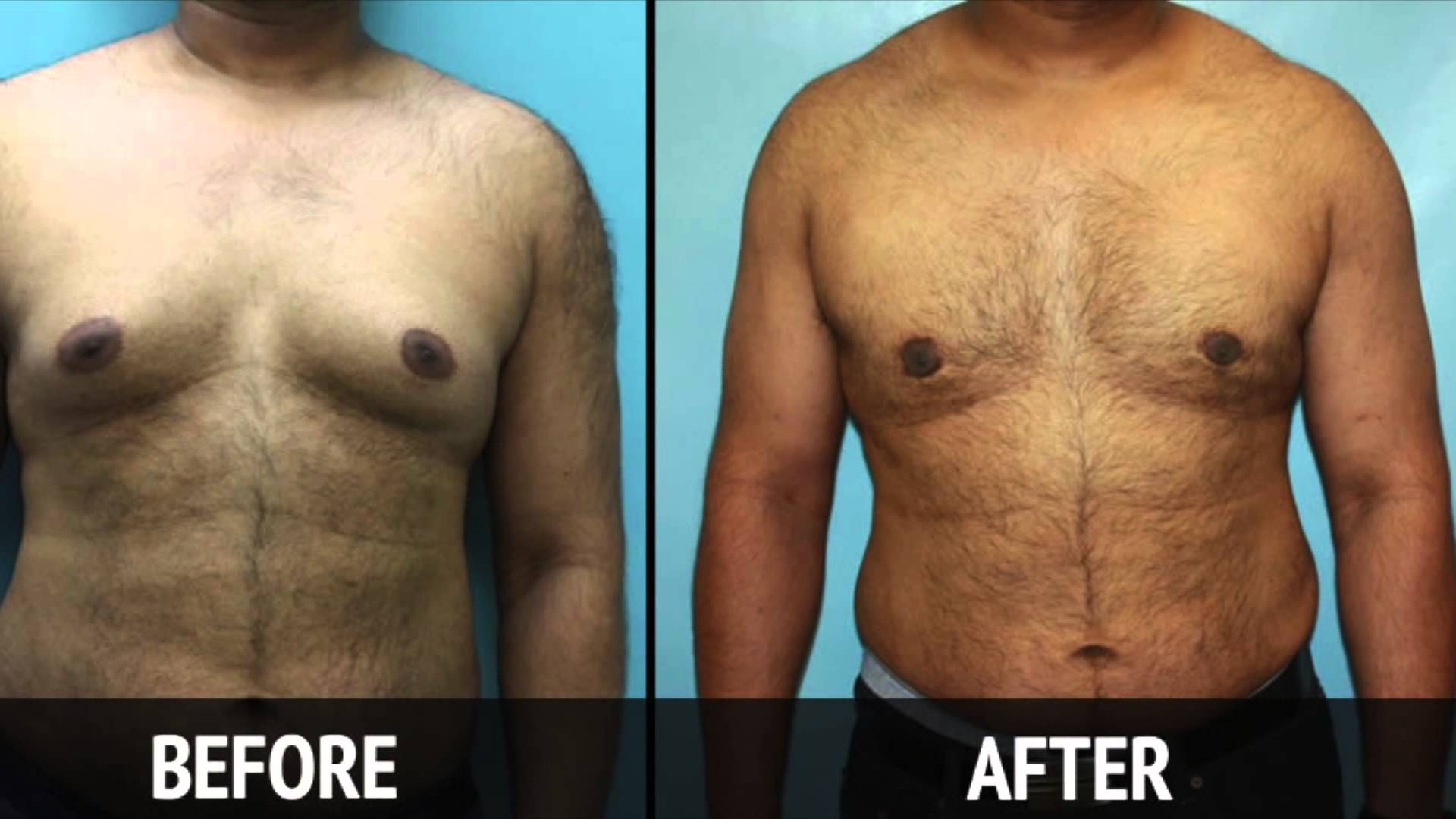 Male Breast Reduction Surgery Before & After Big