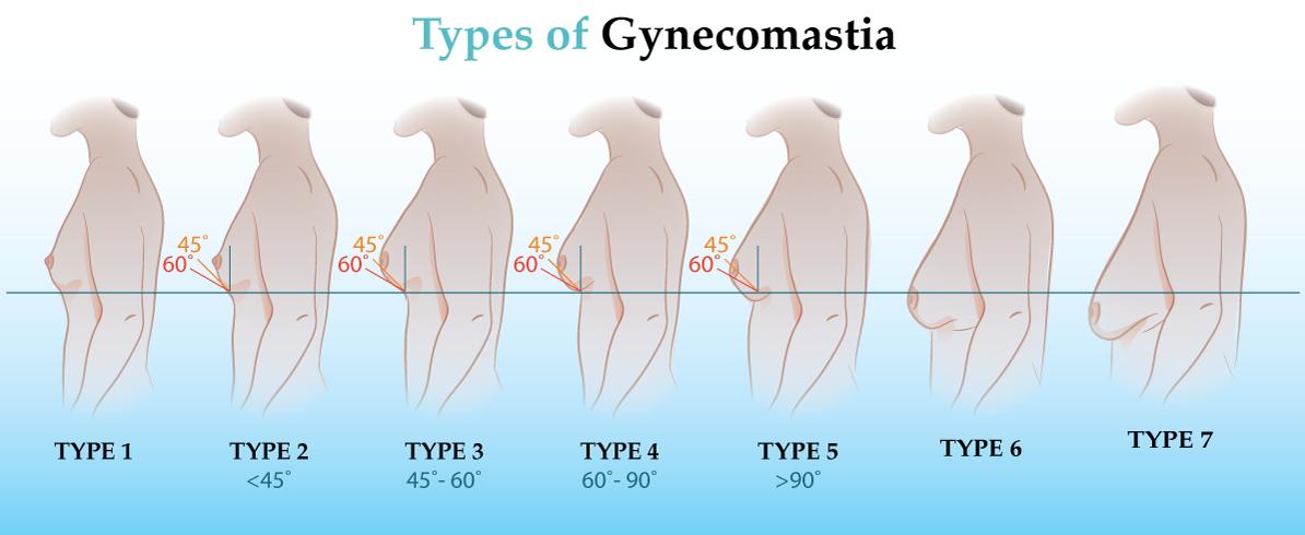 Gynecomastia Types